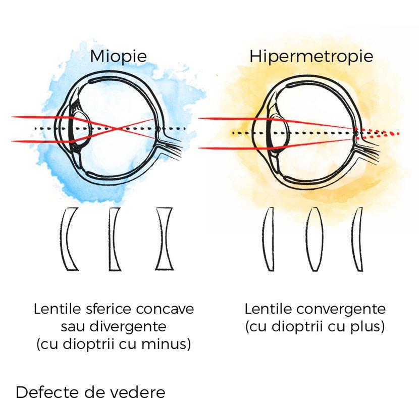 miopie hipermetropie