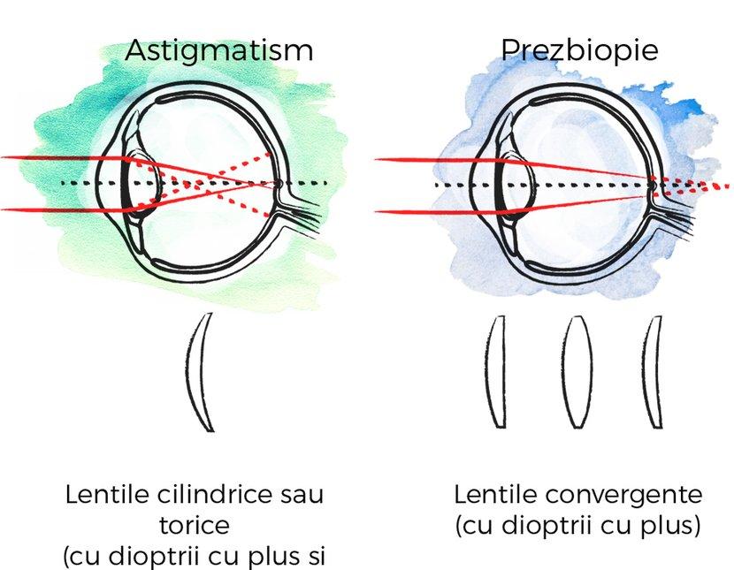astigmatism prezbiopie