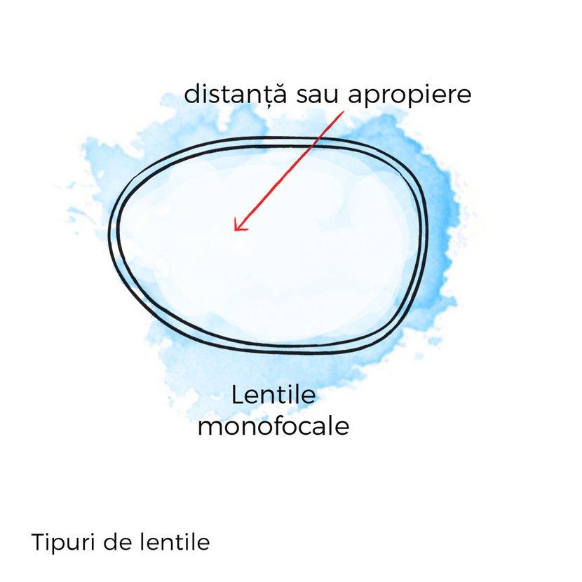 lentile monofocale